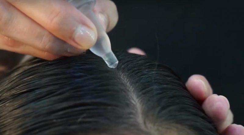 Wypadnie włosów – jak sobie z nim radzić
